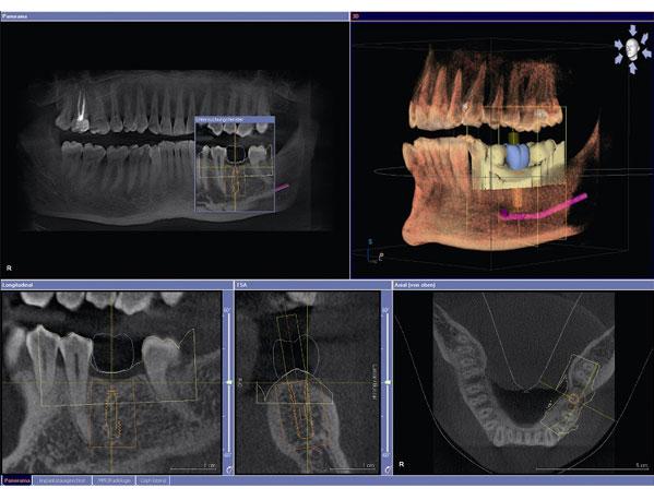Osnovne značilnosti CBCT slikanja zob